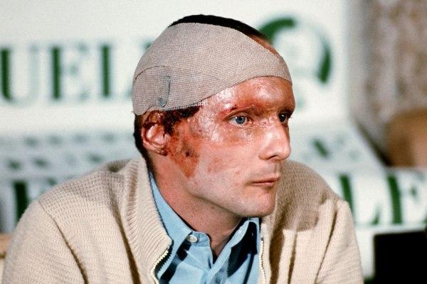 Así quedó el rostro de Lauda por las graves quemaduras